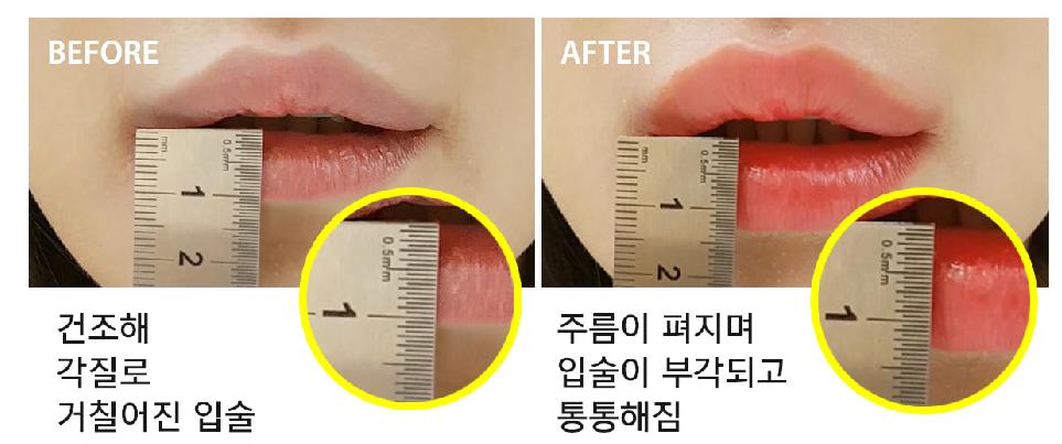 HOTOMIリップを使って、1.5倍になった唇